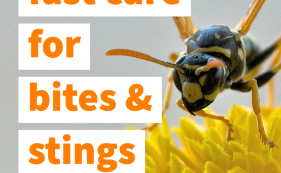 "image of bee on flower with text ""fast care for bites and stings"
